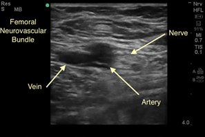 Ultrasound Tip of the Month